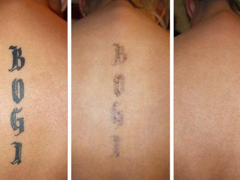 удаление татуировок лазером москва
